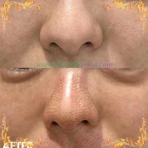 کوچک کردن بینی با پلاسماپن